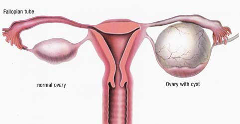 Normal-ovary-and-ovarian-cy