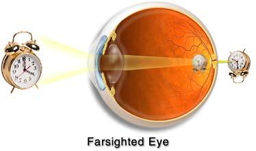 Img-eye-hyper