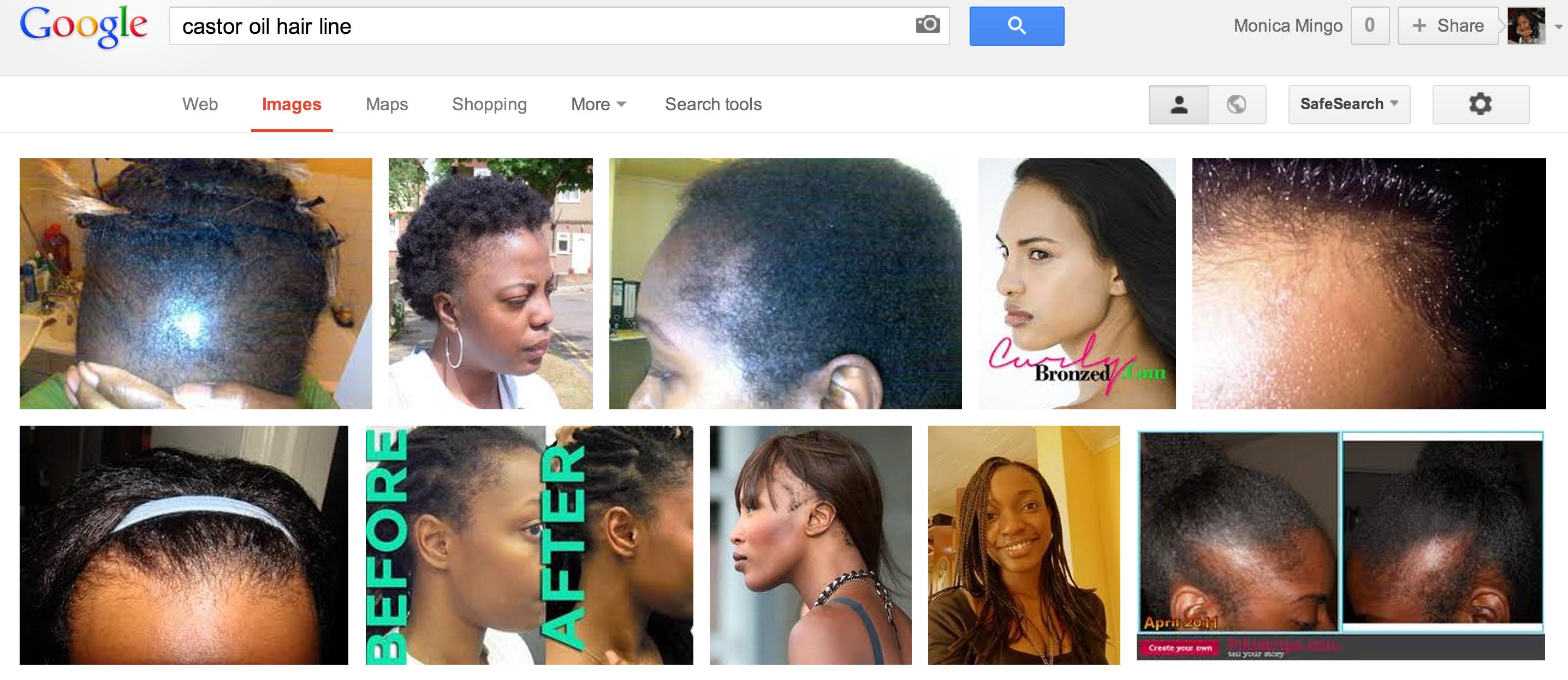 castor oil for thinning hair