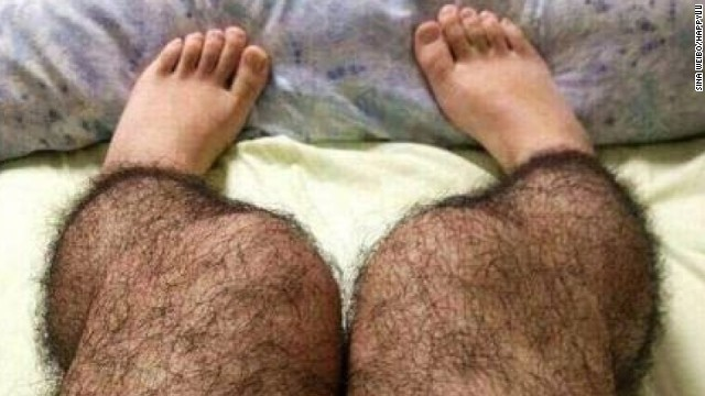 130621090311-hairy-leg-stockings-story-top