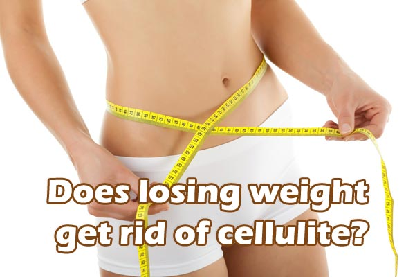 Does-losing-weight-get-rid-of-cellulite